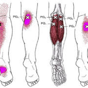 puntos gatillo o trigger points